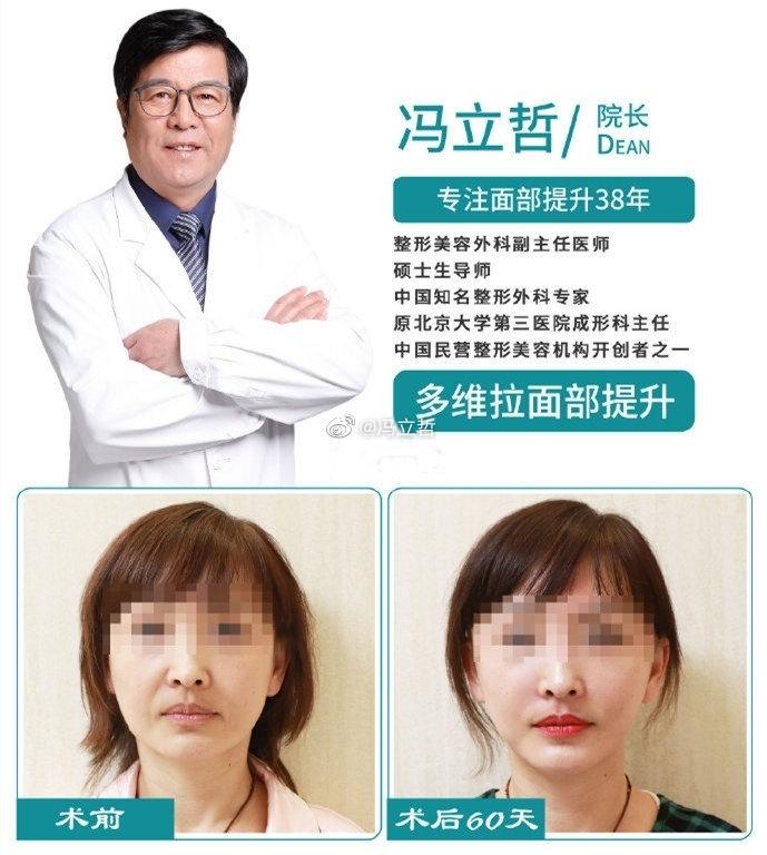 冯立哲和李晓东哪个是专业做面部提升