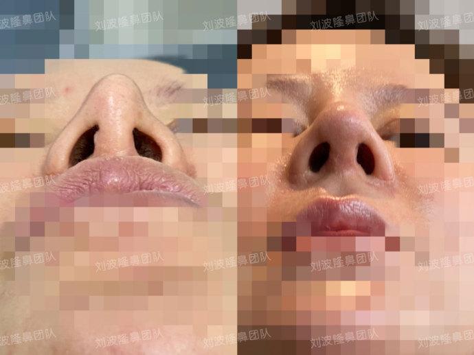 刘波鼻修复案例