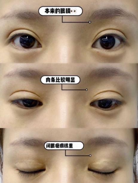 张克眼修复案例