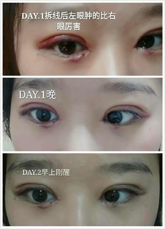 刘宁割双眼皮案例