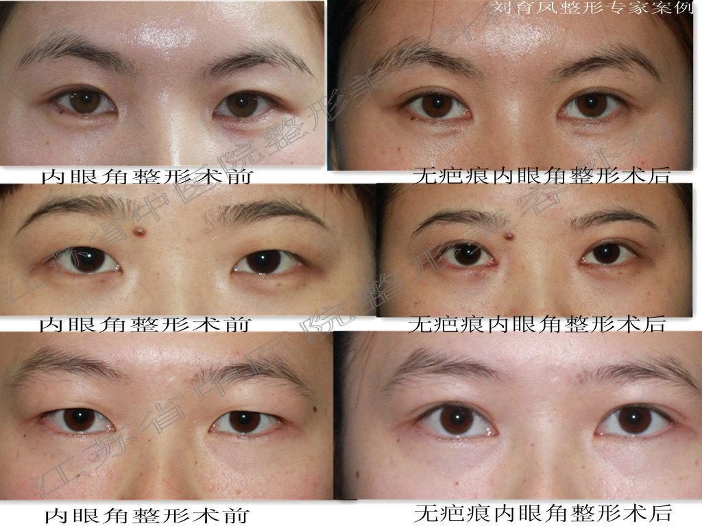刘育凤割双眼皮案例