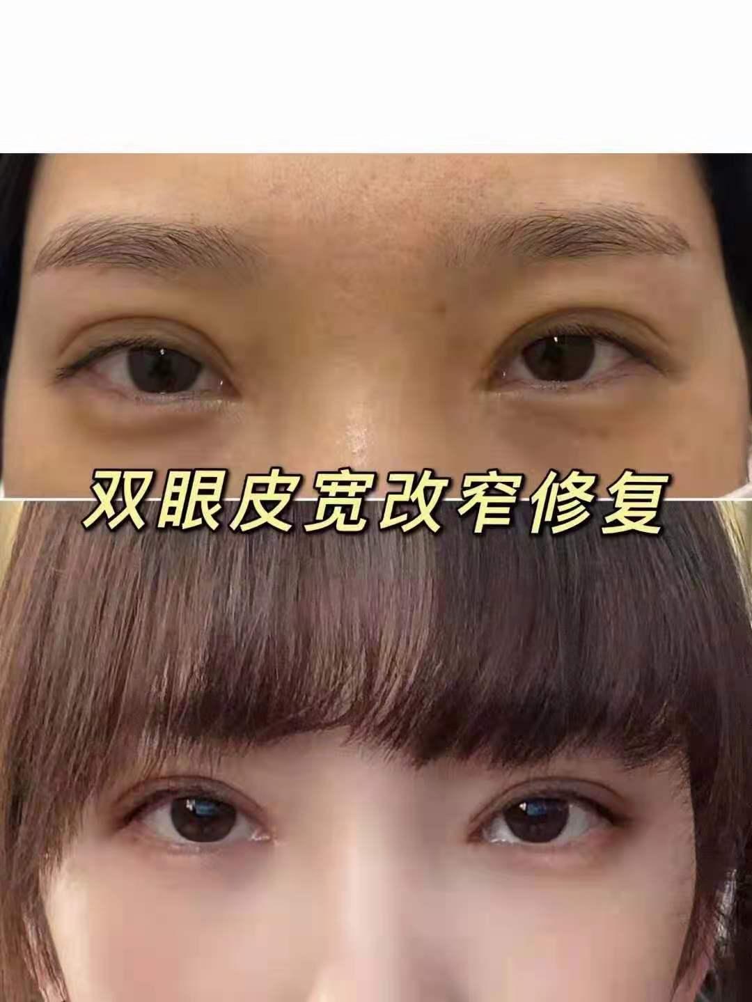 彭昌福修复双眼皮案例