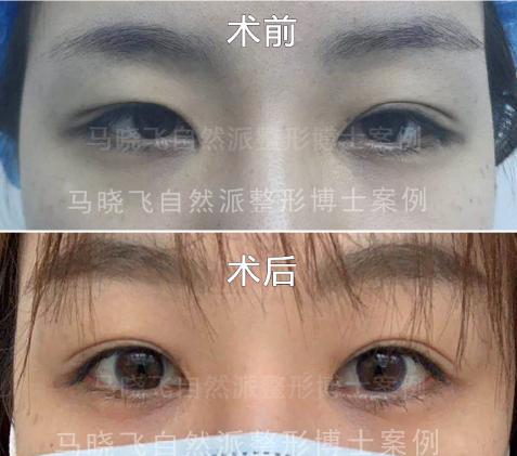 马晓飞修复双眼皮案例