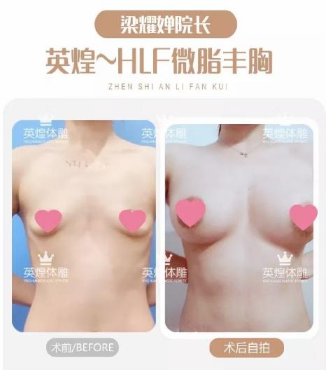 梁耀婵脂肪丰胸案例
