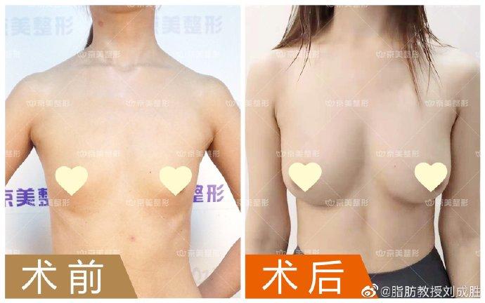 刘成胜自体脂肪丰胸案例