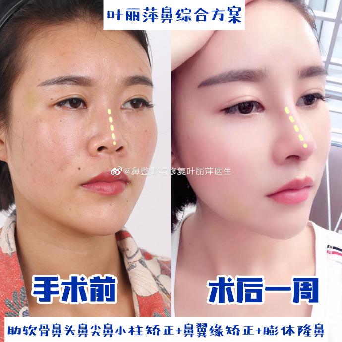 叶丽萍隆鼻案例