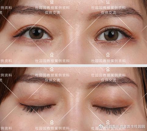 杜园园修复双眼皮案例