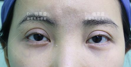 杨亚益修复双眼皮案例