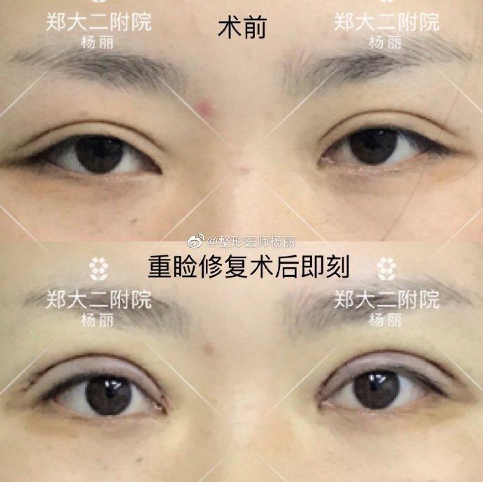 杨丽双眼皮修复案例