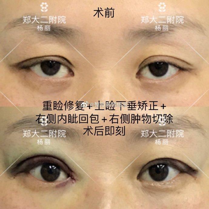 杨丽眼修复案例