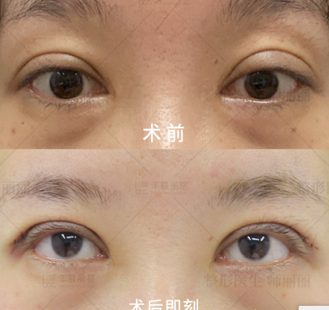 眼修復方面北京師麗麗與魏志香哪個更厲害?