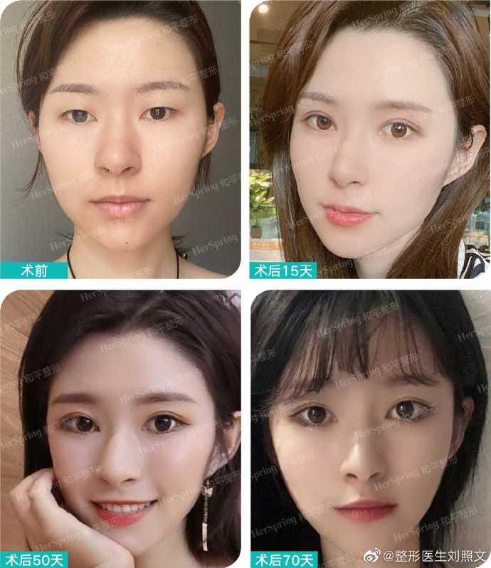 刘照文修复双眼皮案例