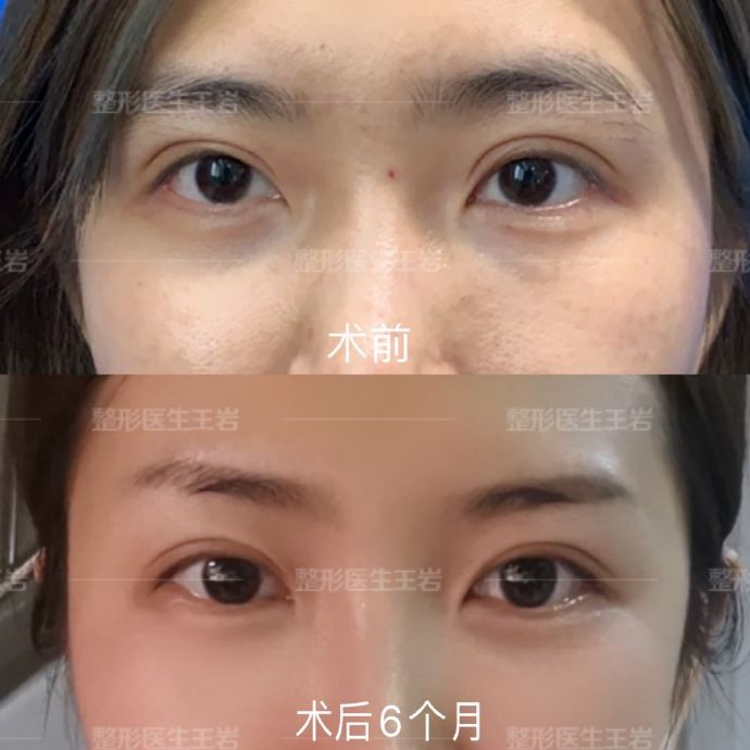 北京聯合麗格王巖醫生做雙眼皮修復怎樣?