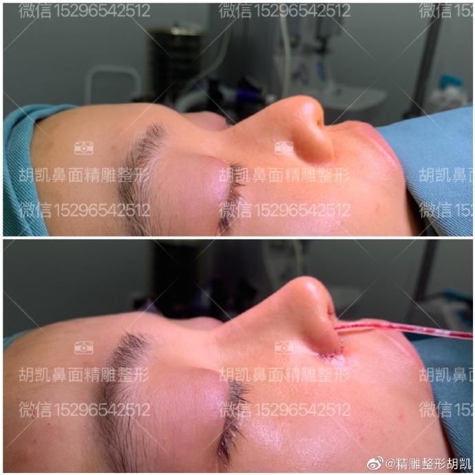 胡凯鼻修复案例