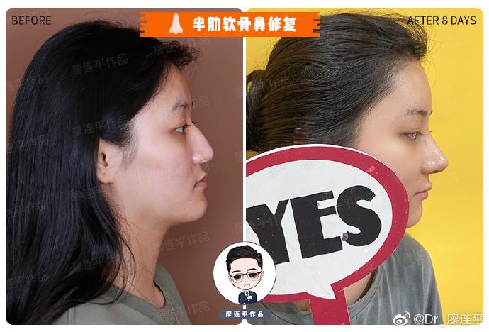 廖连平做鼻子案例