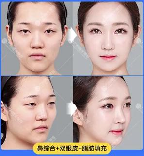蒋思军鼻综合案例