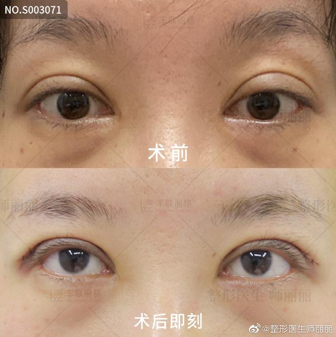 师丽丽修复双眼皮案例
