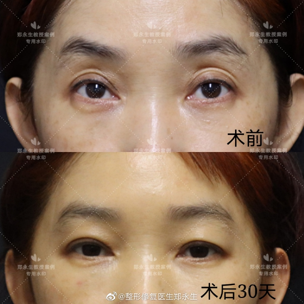 郑永生修复双眼皮案例