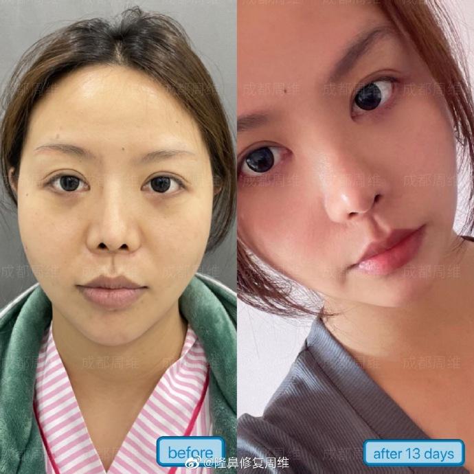周维做鼻修复案例