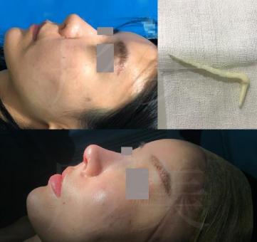 深圳許國明鼻修復技術怎么樣?