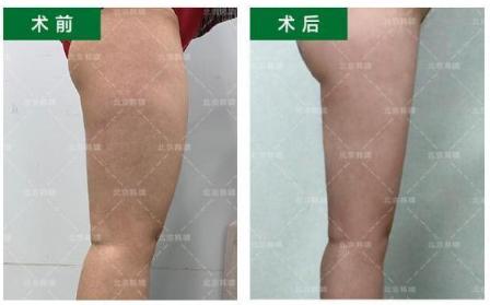 郑博晨大腿吸脂案例