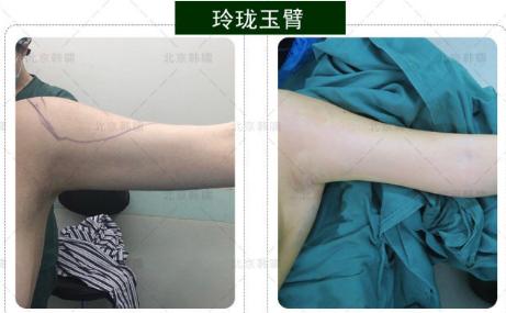郑博晨手臂吸脂案例