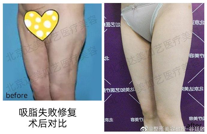 谷廷敏脂肪修复案例