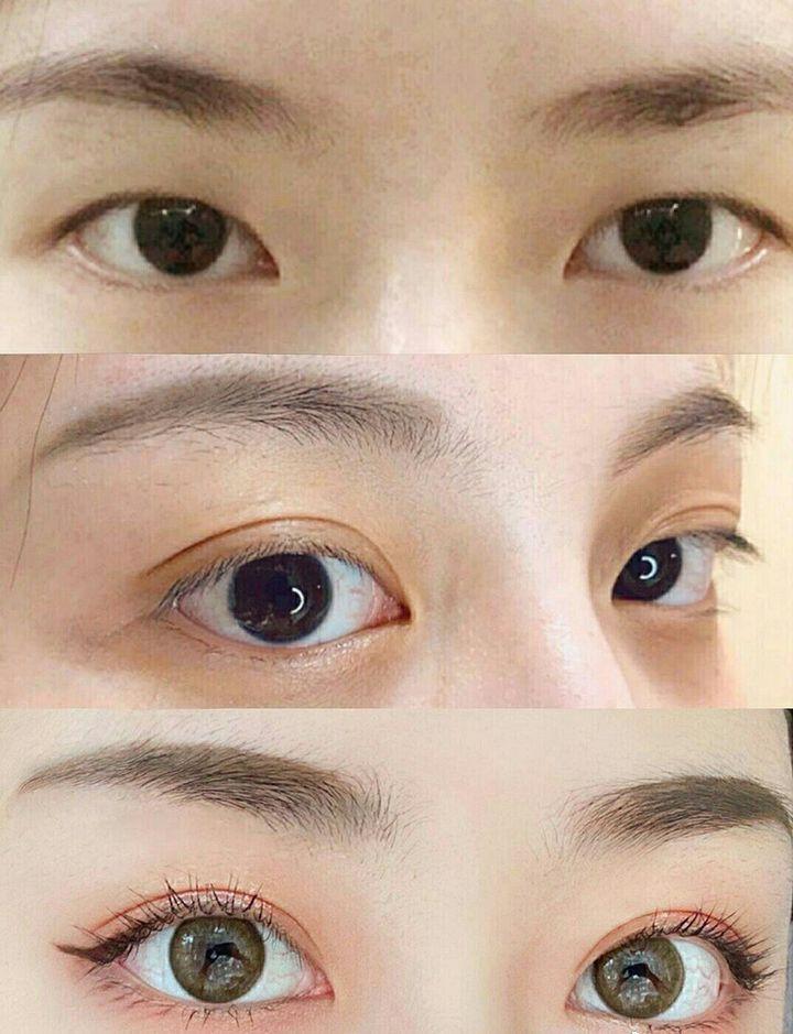 北京吴宇宏双眼皮做得好吗