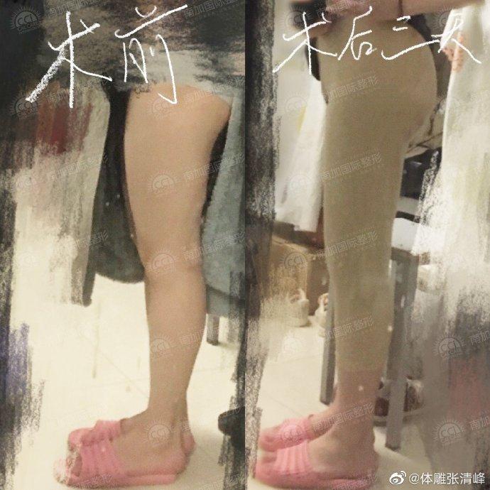 张清峰大腿环吸案例