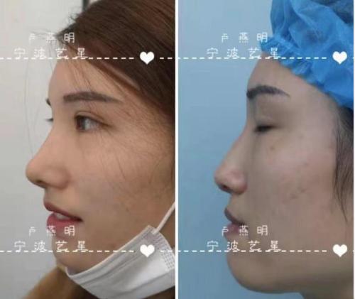 卢燕明做鼻综合案例