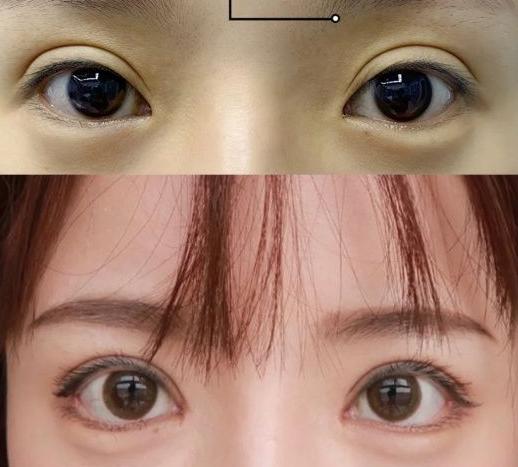北京双眼皮修复哪个医生比较权威