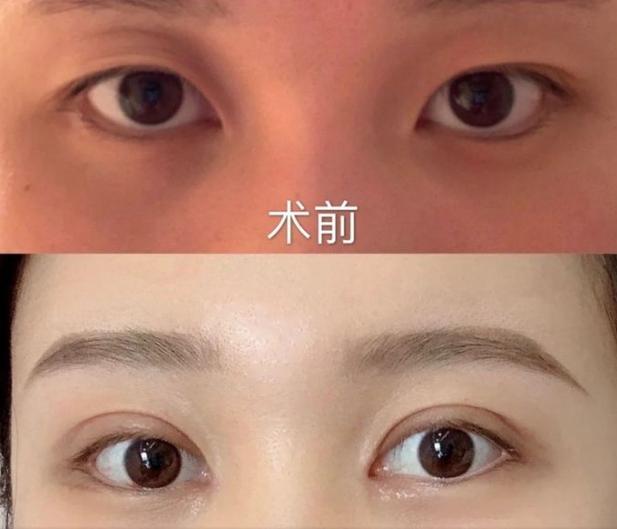 上海九院眼科开双眼皮哪个医生好