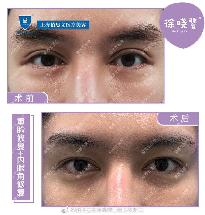 沈国雄徐晓斐对比谁修复双眼皮技术好?
