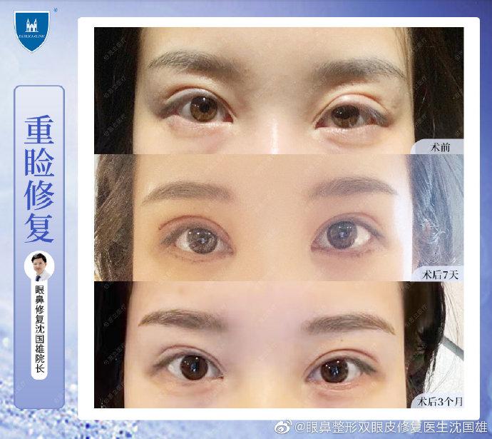 沈国雄修复双眼皮案例