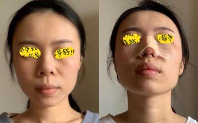 北京鼻修复最好的专家是谁