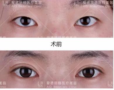 杜園園劉志剛誰修復失敗雙眼皮技術好?