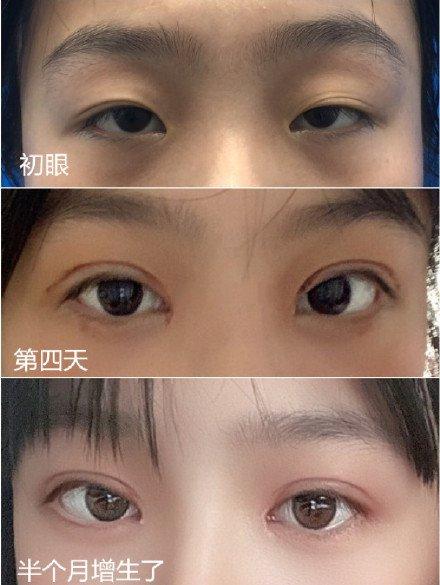 成都最有名的割雙眼皮醫生預約排行榜
