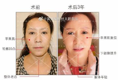 杜太超面部提升案例