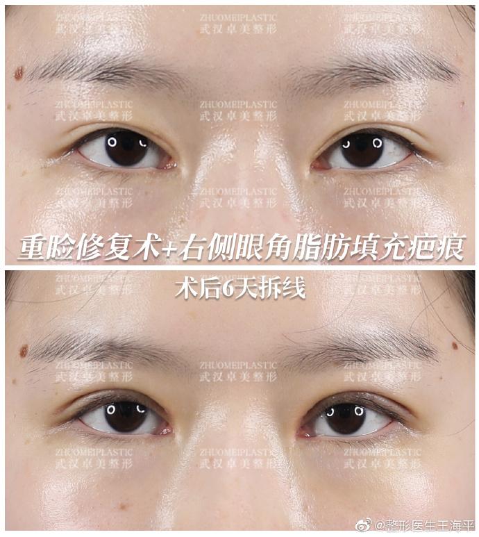 王海平双眼皮修复案例