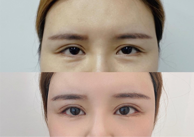 2022年全国双眼皮修复医生预约前十名