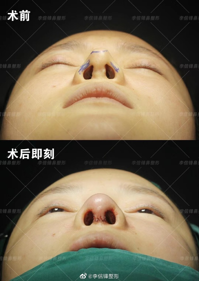 李信锋鼻修复案例