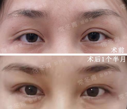 北京常冬青双眼皮修复技术好吗?常冬青案例简介