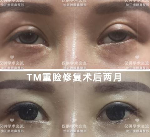 沈正洲双眼皮修复案例