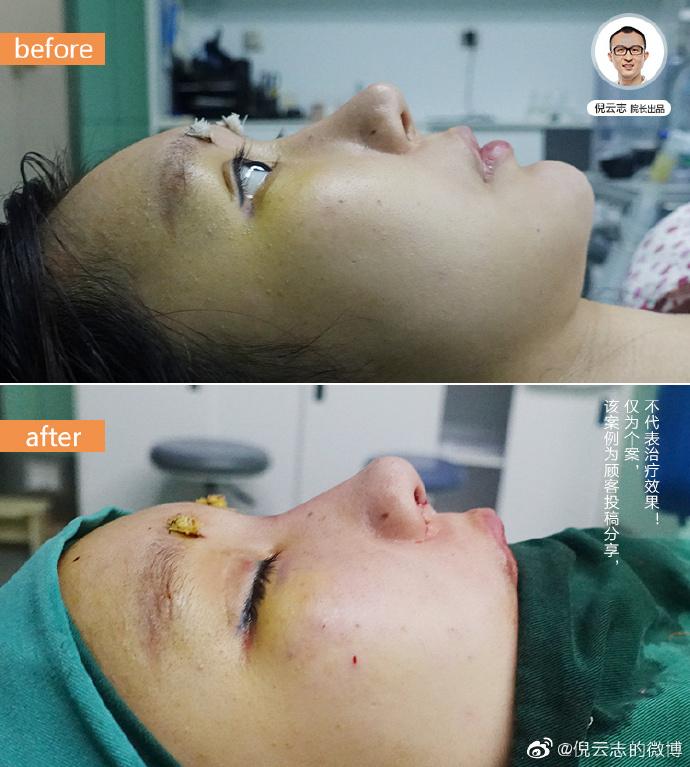 倪云志肋骨鼻修复案例