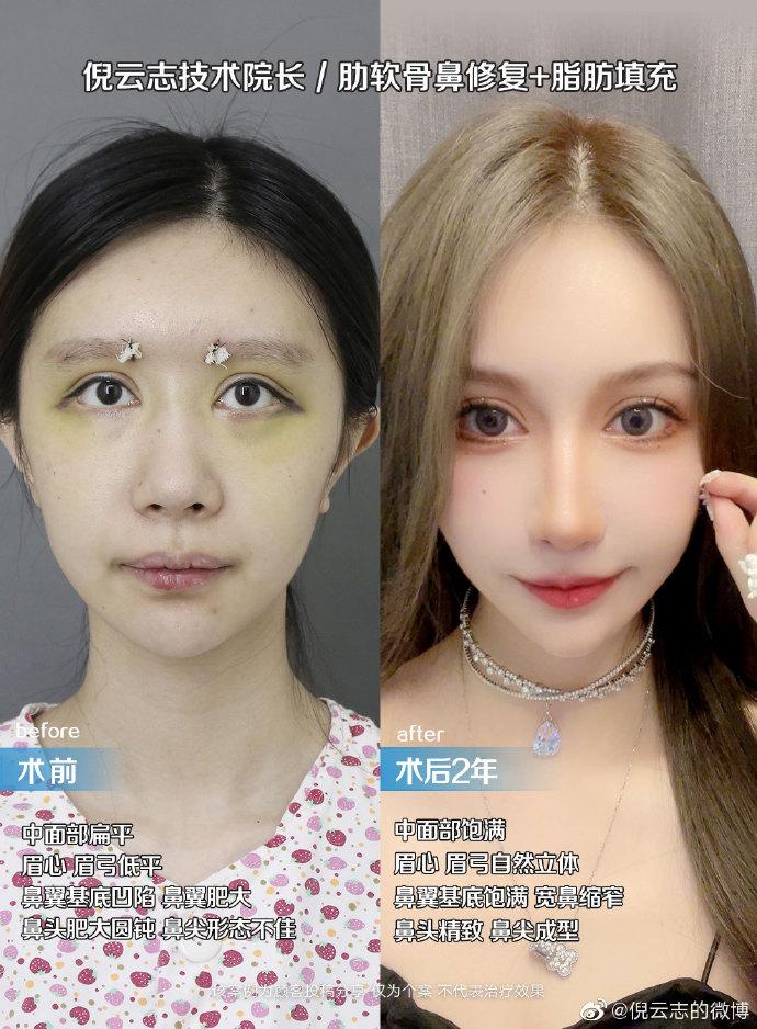 倪云志肋骨鼻鼻修复案例