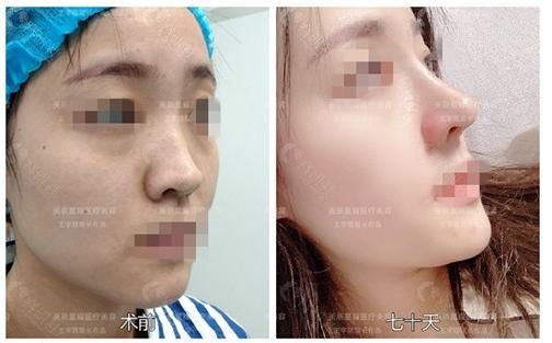 王宇琨做的鼻子案例