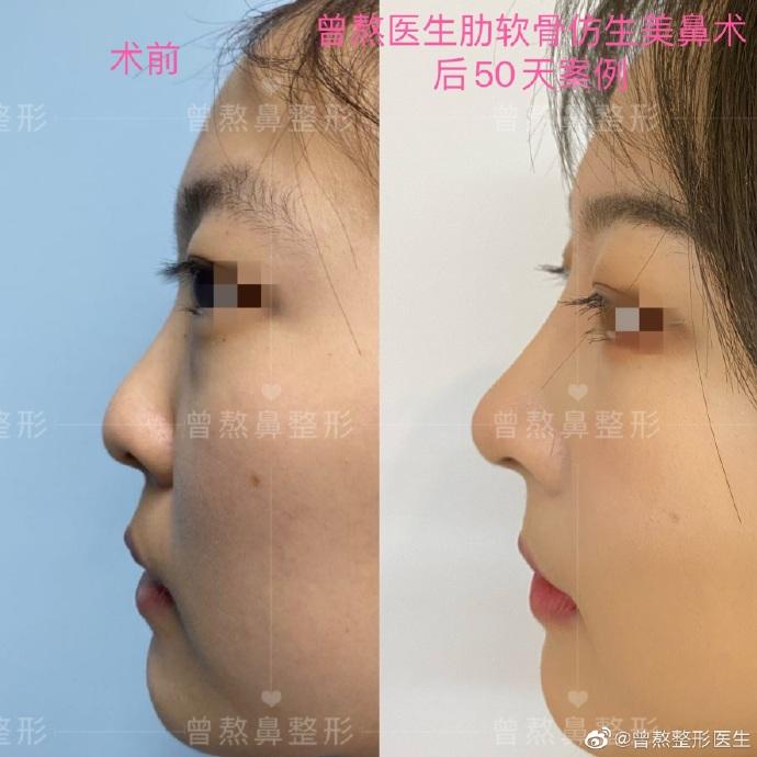 西安曾熬做鼻子怎么樣,曾熬隆鼻技術靠譜嗎?