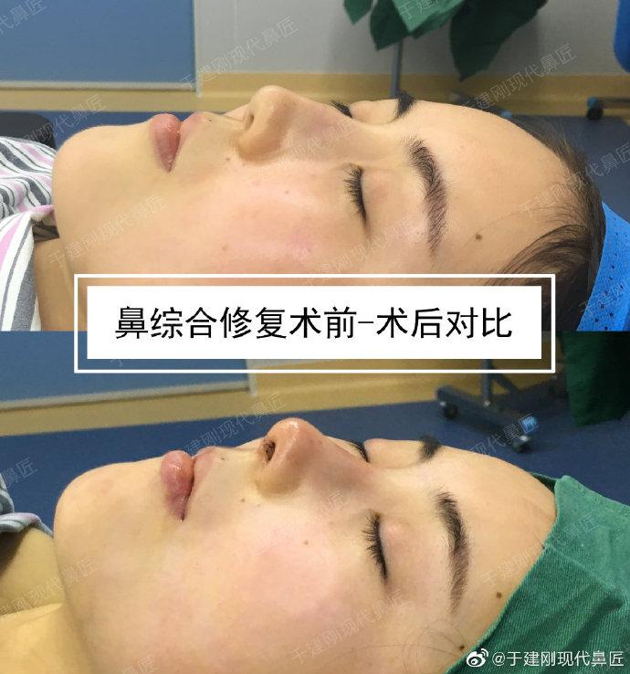 于建刚鼻修复案例