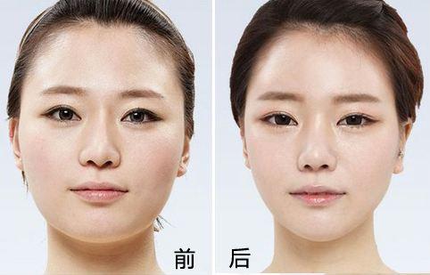 上海九院改脸型专家哪个最厉害?