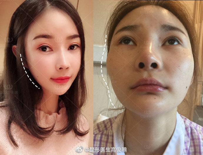 高俊明改脸型效果怎么样?技术好不好?